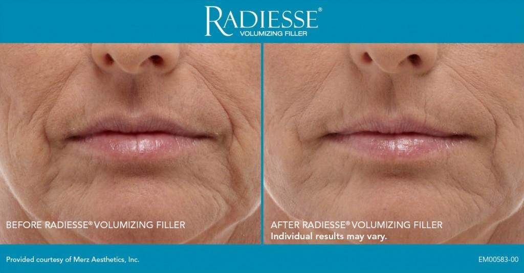 radiesse-sample1