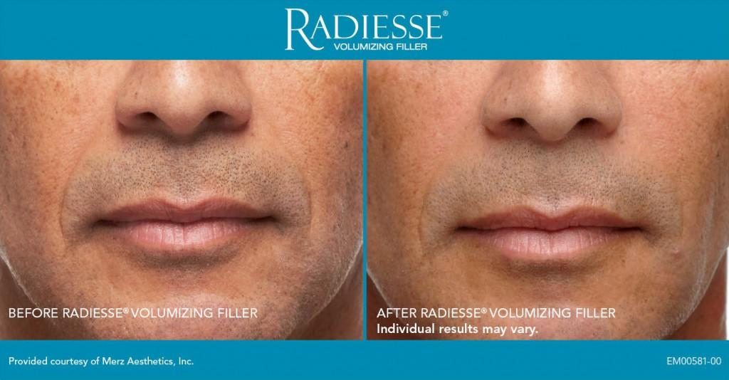 radiesse-sample2