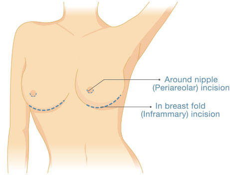 How does breast augmentation work